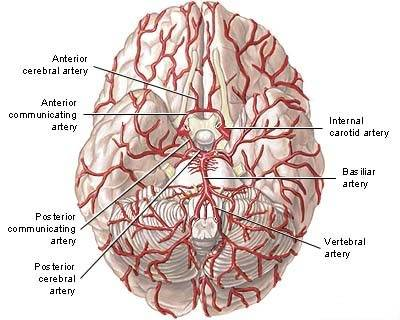 Low Activity of Enzymes Involved in Pompe, Fabry Diseases Linked to More Dilated Arteries in Brain, Study Reports