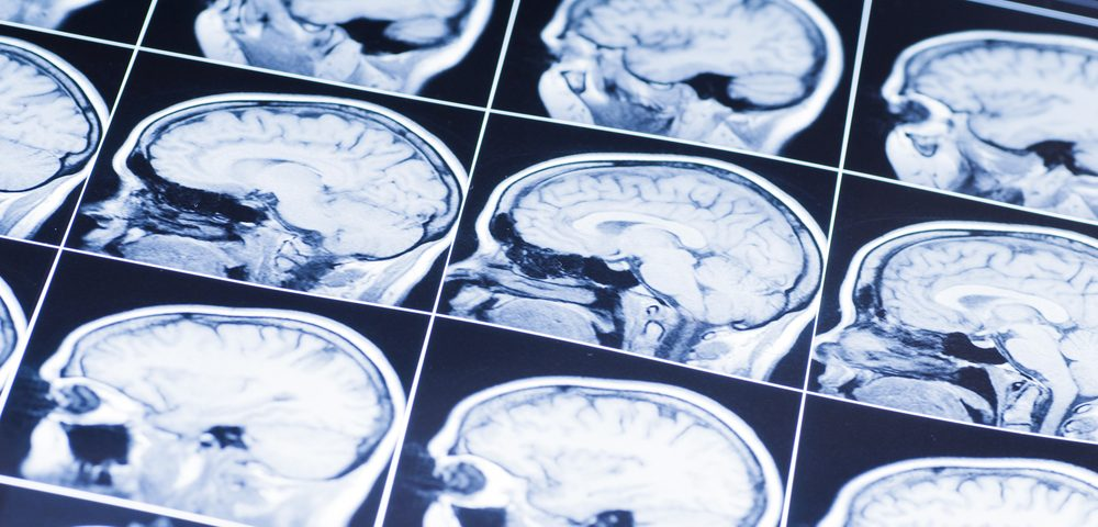 Tongue Abnormalities Seen on MRI are Common in Late-Onset Pompe, Study Says