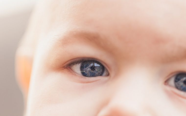 Nystagmus, eye movement condition